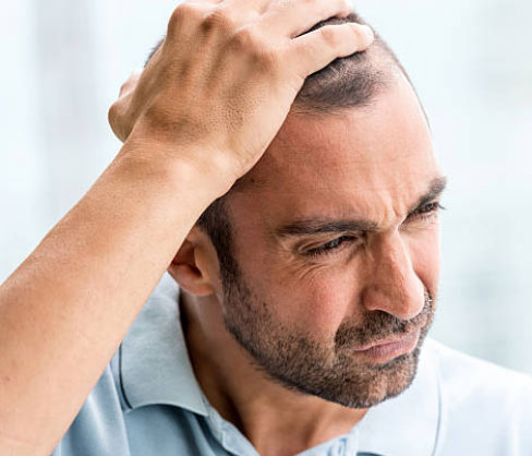 hair-loss-products-for-men